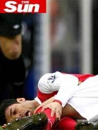 Futebol: Foto de Fratura de Eduardo da Silva do Arsenal Impressiona