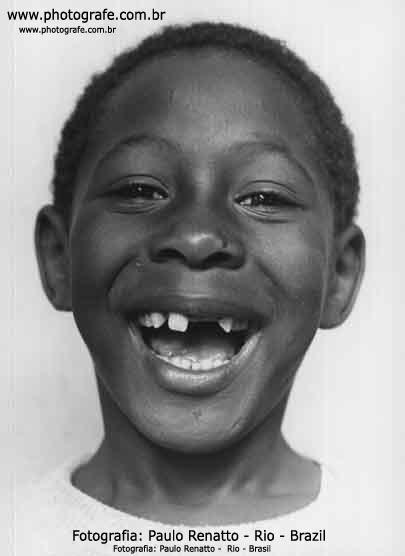 Menino Sorrindo Banguela