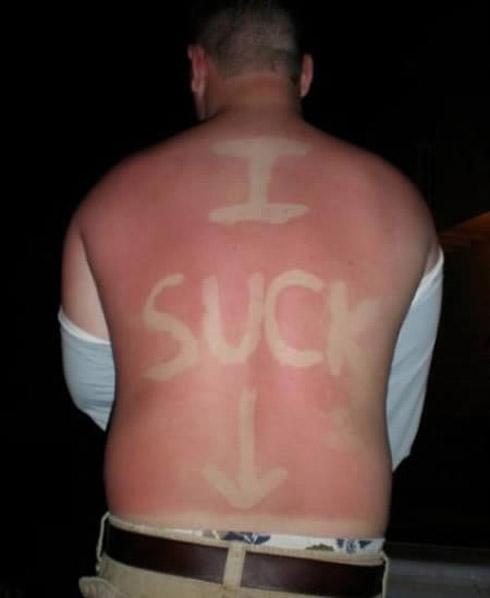 Tatuagem solar: uma moda perigosa