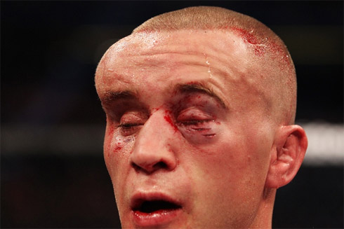 UFC: Os rostos mais detonados do MMA