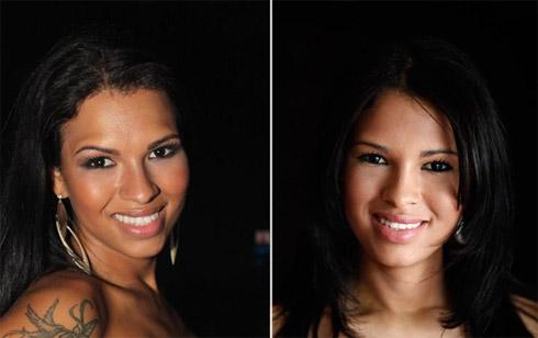 Ariadna do BBB: Antes e depois da cirurgia plástica